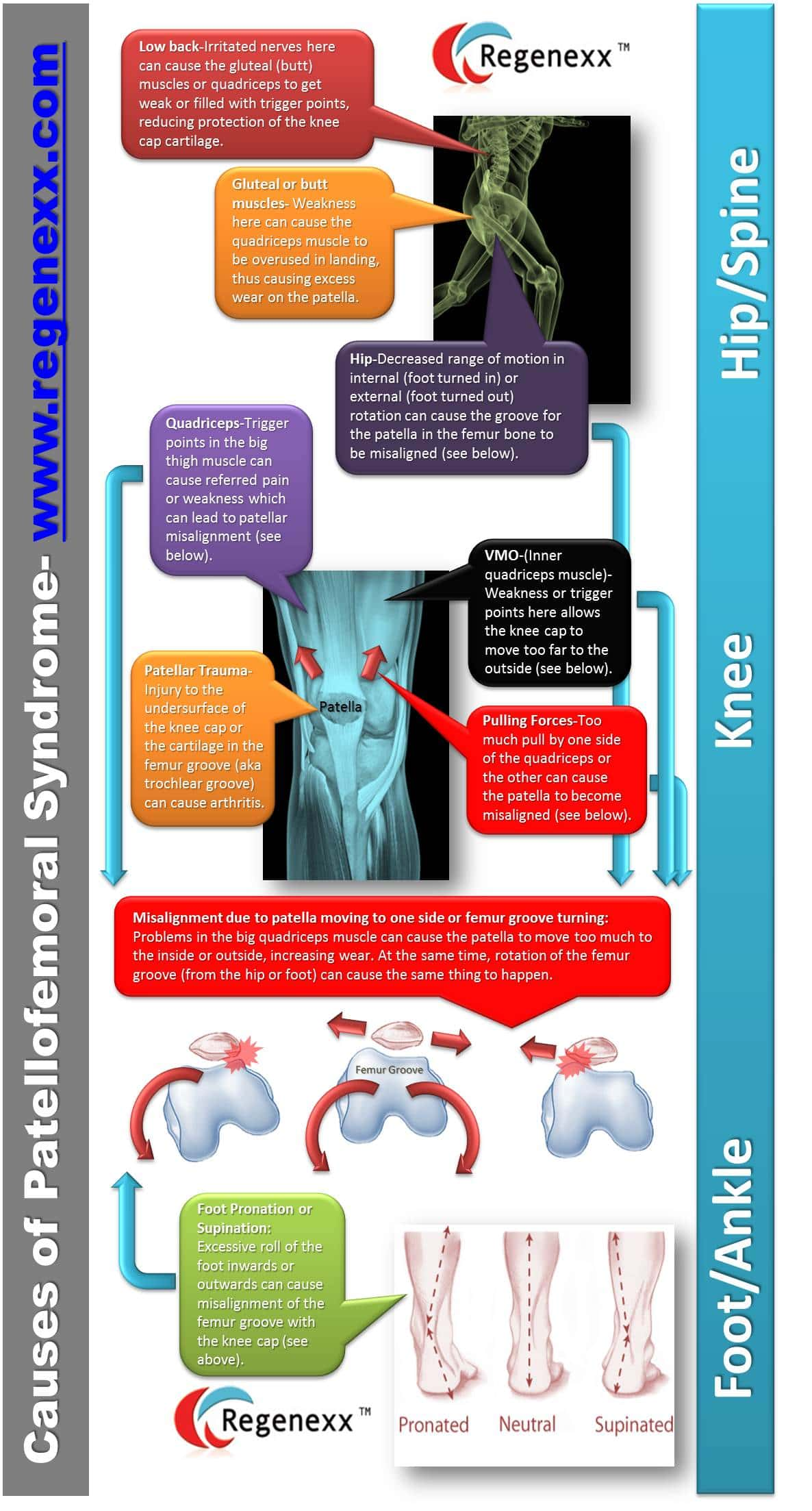 patellofemoral pain syndrome infographic