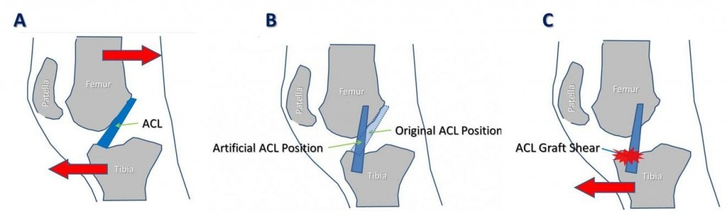 acl surgery rehab