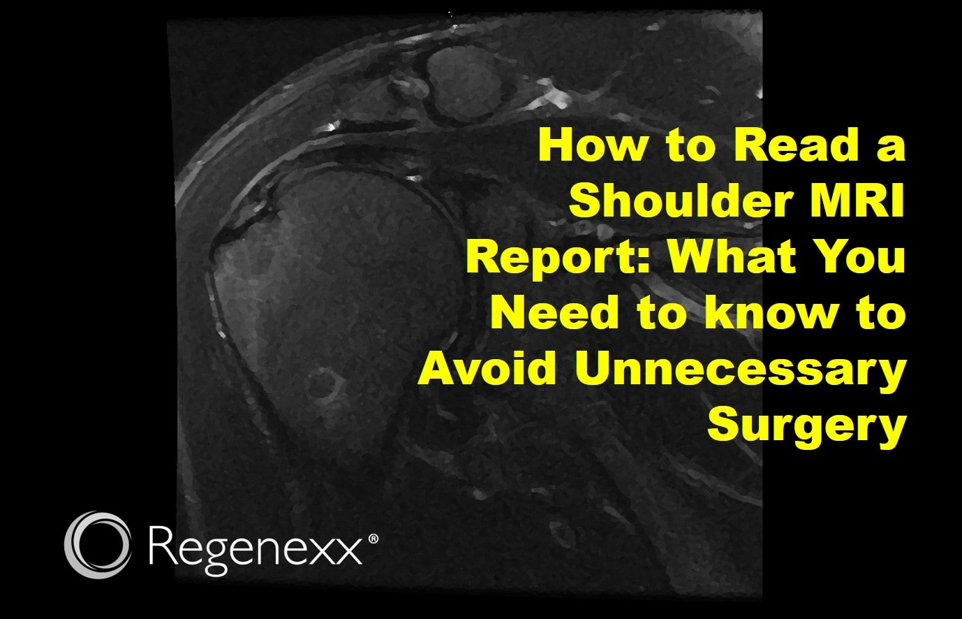 How to Read a Shoulder MRI Report - Regenexx®