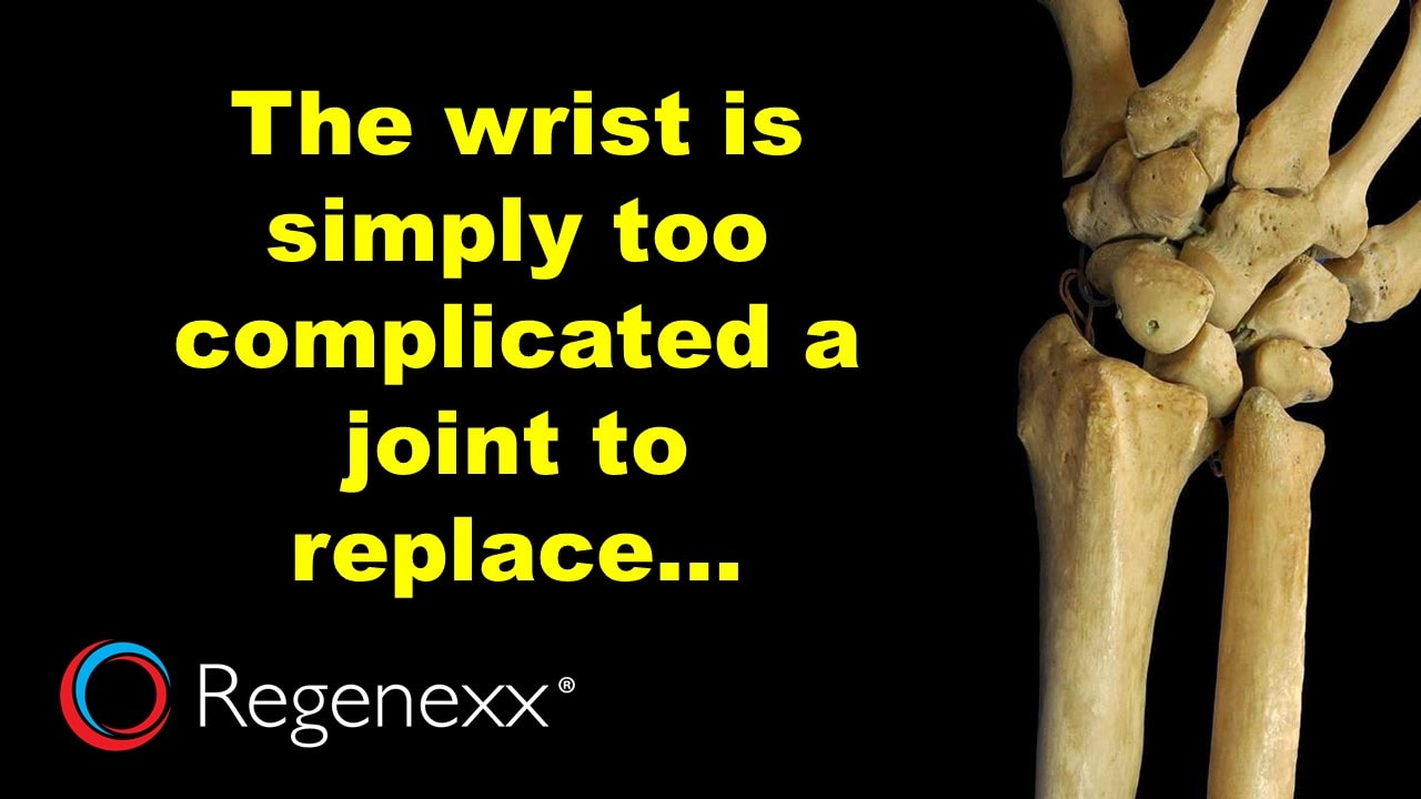 Wrist Replacement Success Rates Confirm Surgery Not The Answer