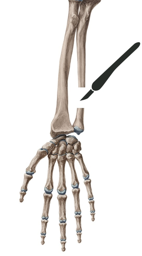 Ulnar Shortening—Avoid This Barbaric Procedure - Regenexx®