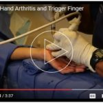 prp to treat hand arthritis and trigger finger
