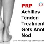 prp achilles tendon treatment