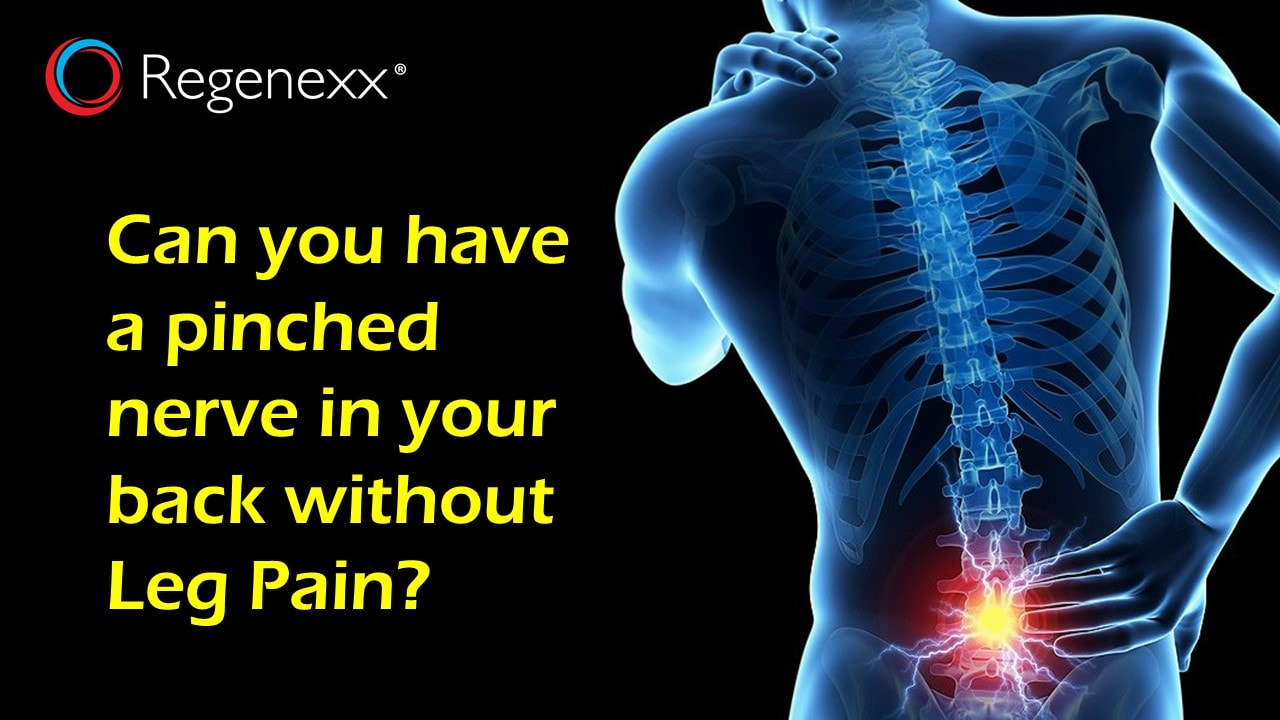 You May Have A Pinched Low Back Nerve Despite What Your Doctor